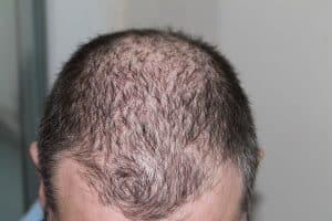 alopécie