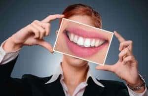 beau sourire blanc